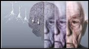 Articles Alzheimer's & Dementia
